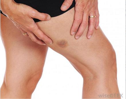 Ez a 12 tünet a bőrön előre jelzi a cukorbetegséget - Blikk Rúzs