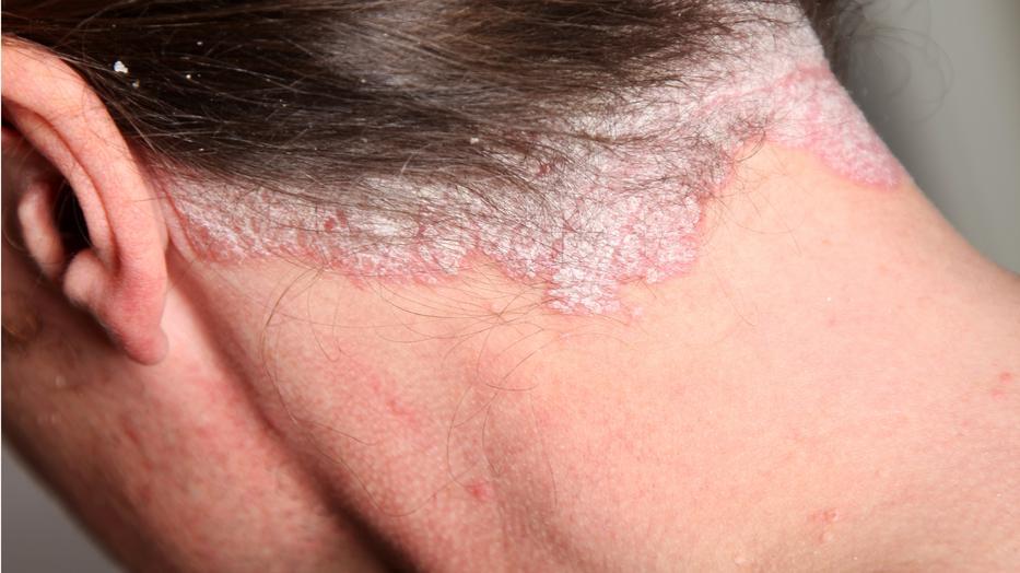 vörös pikkelyes foltok a glórián a pikkelysömör kezelésének komplexe