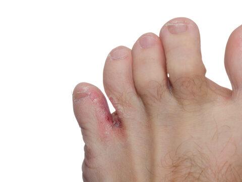 krém a foltok között a lábak között a láb bokáján foltok sötétvörösek
