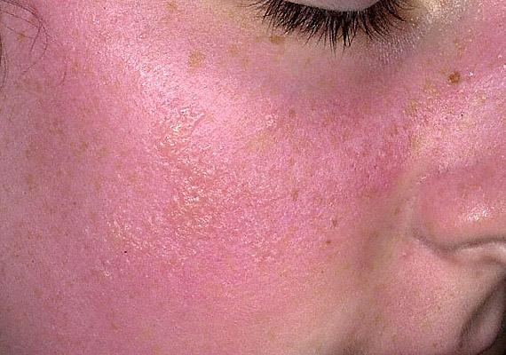 irritáció az arcon vörös foltok formájában az állon pikkelysömör kezelése népi gyógymódokkal fotók előtt és után