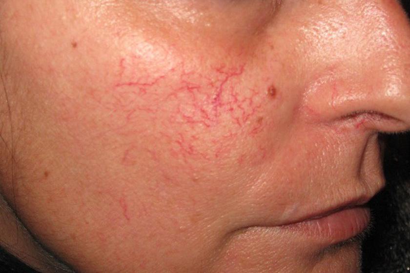 mint gyorsan eltávolítani az arcon lévő vörös foltokat panthenol krém pikkelysömör vélemények