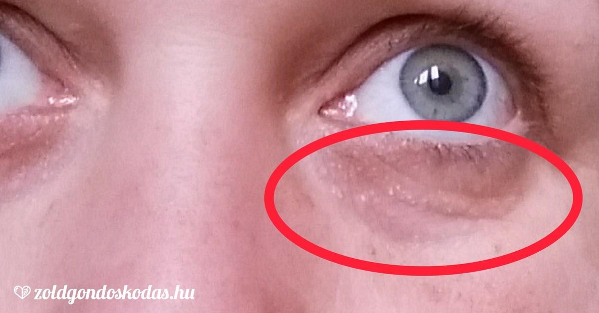 vörös foltok az arcon a szem alatt mi ez