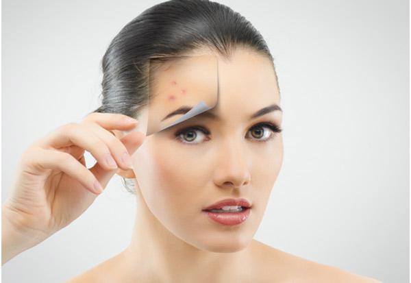 hogyan lehet eltávolítani a vörös foltokat az arcon lévő pattanásoktól