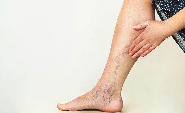 a láb duzzadásának és a lábán lévő vörös foltok oka balzsam macadamia s egy sor pikkelysmr