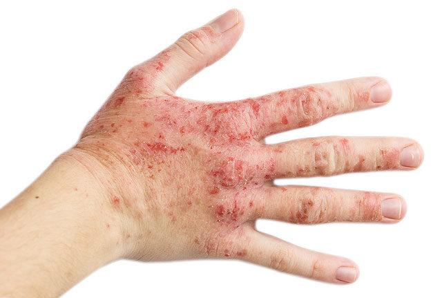 gnmarinin vsmarinin pikkelysömör kezelése pikkelysömör kezelése perhidrollal
