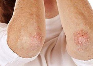 Psoriasis vulgaris | genetech.hu