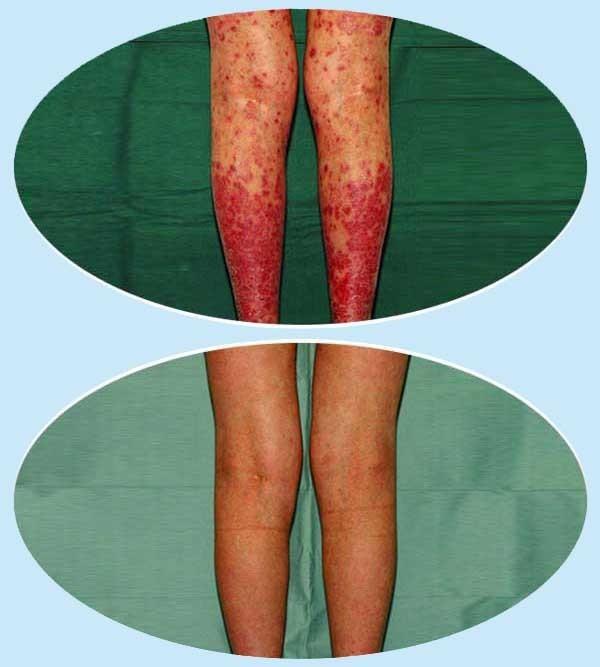 Holt-tengeri só krém (bőrbetegségek kezelésére) ml [VPH]