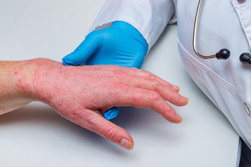 Hogyan gyógyítottam meg a pikkelysömör cikket a test viszket és vörös foltok jelennek meg este