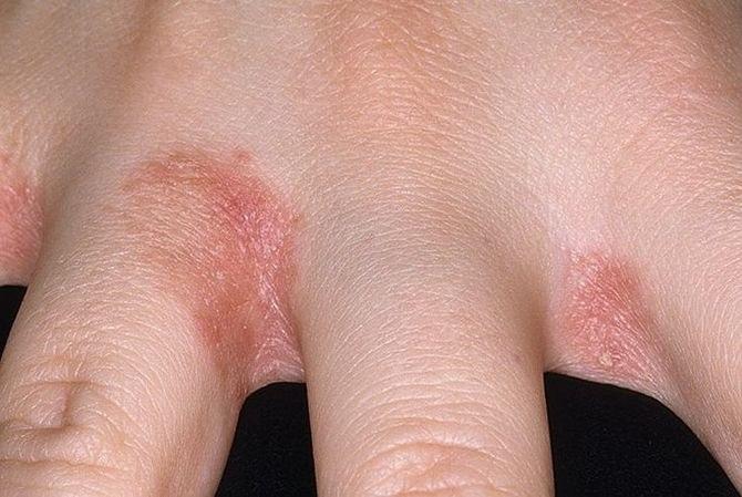 Foltok a bőrön pelyhesek, de nem viszketnek: okok és kezelés - Moles November