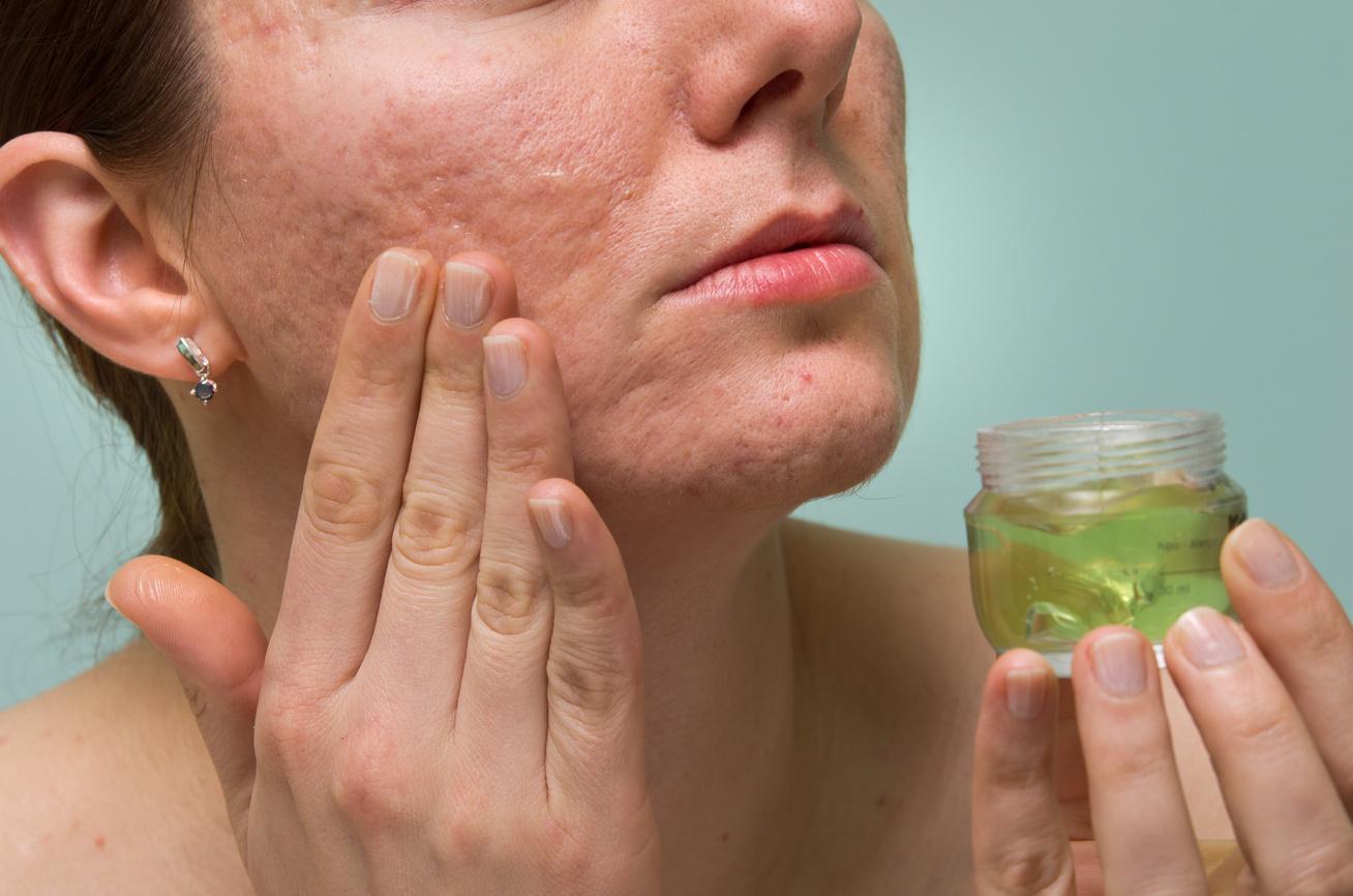 hogyan gyógyíthatja meg arcát a vörös foltoktól