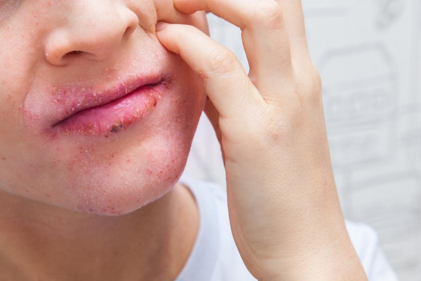 egészséges bőr pikkelysömör kicsi piros folt a hasán