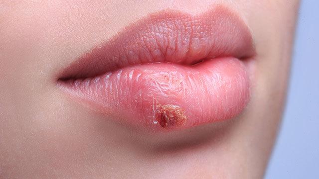 vörös folt a herpesz után, mint kezelni olívaolaj a pikkelysömörhöz