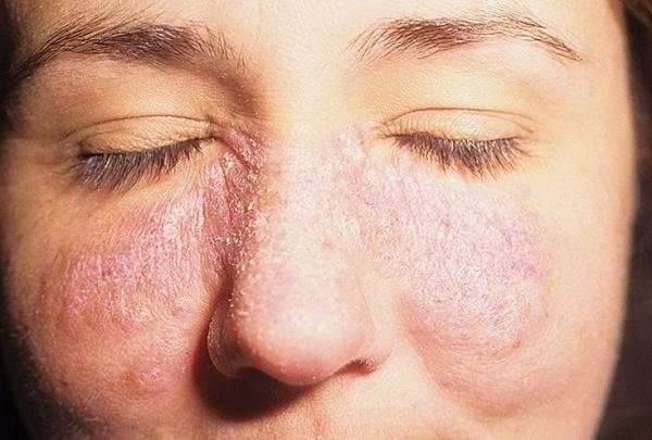 vörös foltok jelennek meg az arcán hámozódnak