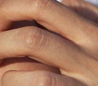vörös durva folt jelent meg a kézen