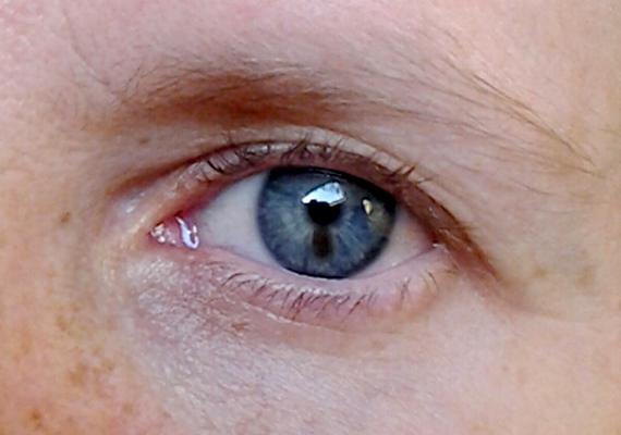 vörös folt a szem szemzugában a bőrön vörös folt van az arcon és lehámlik
