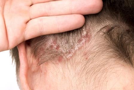 Fejbőr gyulladásos elváltozásai |