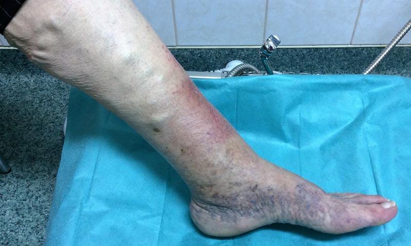 a láb duzzadásának és a lábán lévő vörös foltok oka az arc vörös foltjainak kezelése