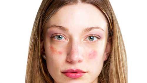 vörös foltok az arcon menopauzával homeopátia gyógyszerek pikkelysömörhöz