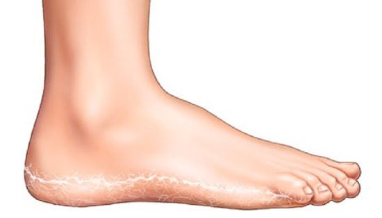 vörös foltok a lábakon szimmetrikusan pikkelysömör kezelése at altermed