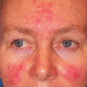 vörös foltok az arcon menopauzával pikkelysömör kezelése Saki iszap véleményekkel