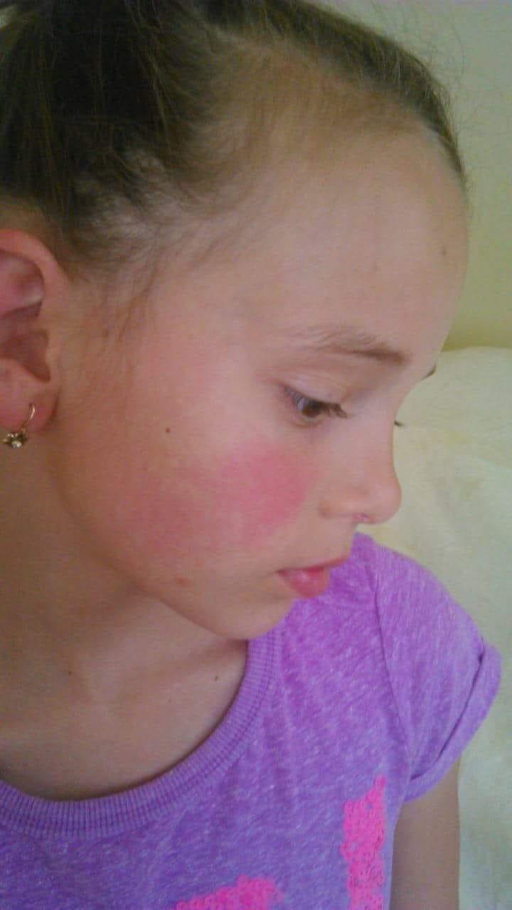 hányás után vörös foltok az arcon hogyan lehet eltávolítani a kezek piros foltjait