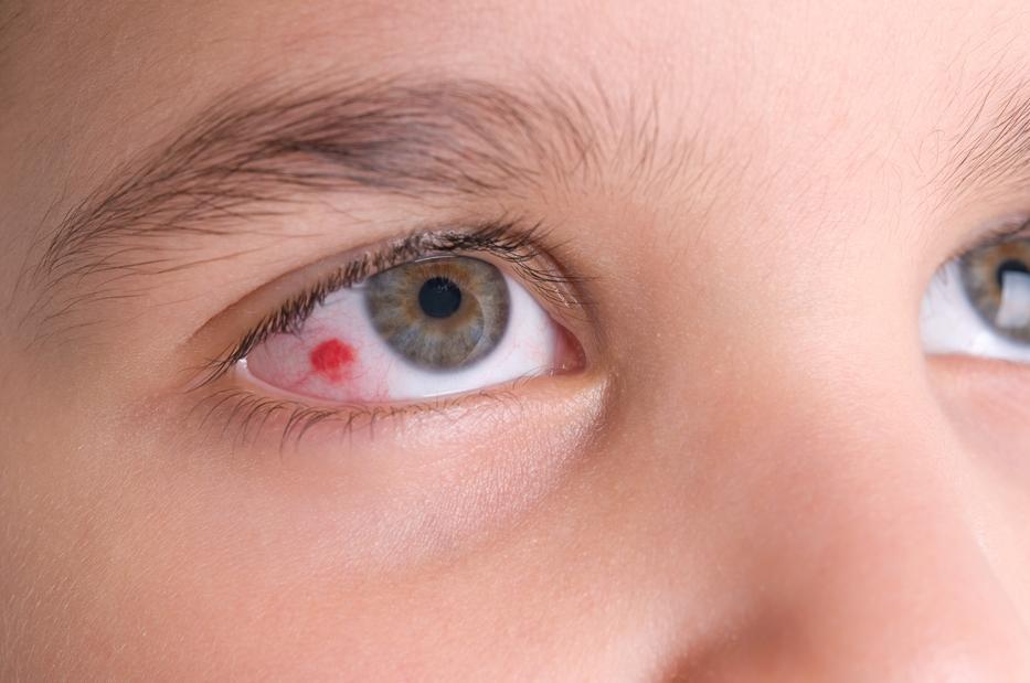 Mi a teendő, ha a szemhéj megduzzadt, vörös, viszkető és pelyhes