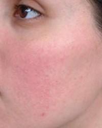 vörös foltok az arcon betegség alatt