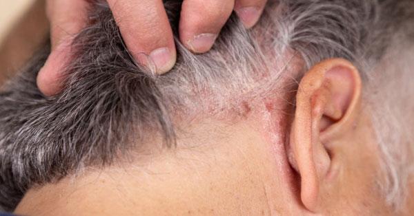 a fejbőr pikkelysömörének okai és kezelése pikkelyes vörös foltok a fején