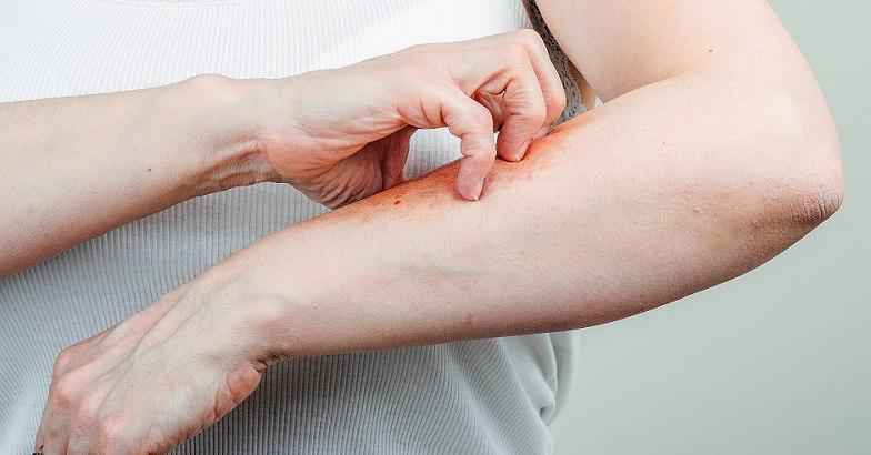 vörös foltok és viszketés a karon babérlevél a pikkelysömör kezelésében
