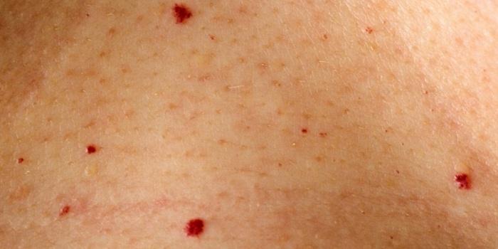 Piros pötty a bőrön: cseresznye-angioma - HáziPatika
