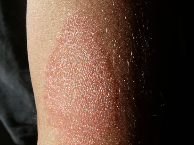 apró piros foltok a hason és a karokon