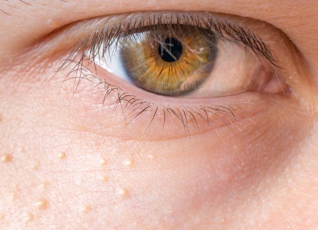 apró vörös foltok a szem körüli bőrön
