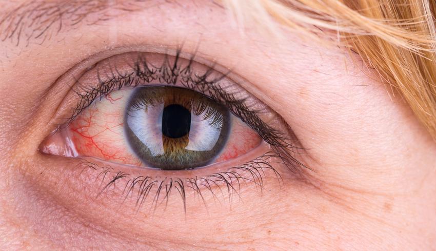 az alsó szemhéjon vörös foltok hámlanak le vörös foltok irritáció az arcon