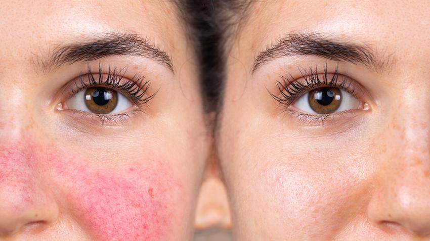 vörös foltok hólyagokkal a testen viszketnek helyi kezelés a fejbőr pikkelysömörére