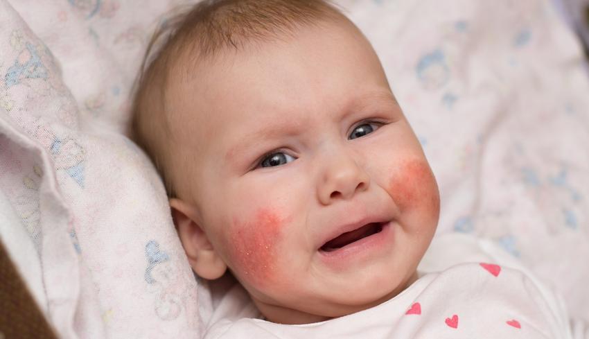 amelyből vörös foltok vannak az arcon és a lábakon