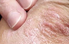 pikkelysömör tüneteinek kezelési módszerei száraz vörös foltok az arcon és a nyakon