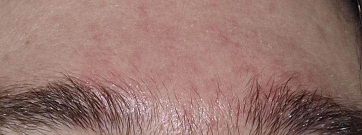 vörös foltok hámló bőrt az arcon
