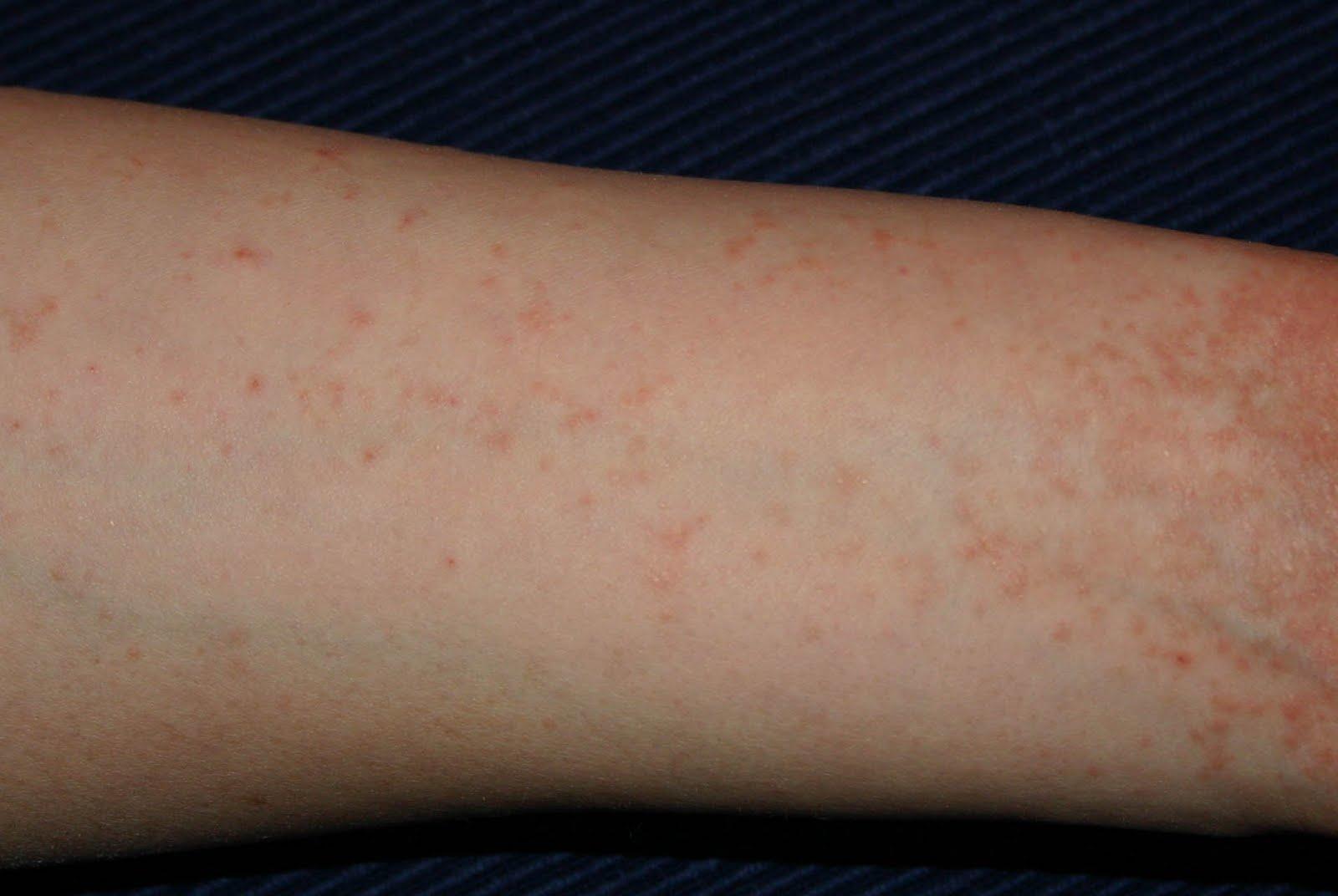 mustárolaj pikkelysömör kezelése vörös foltok mentek végig az egész testen