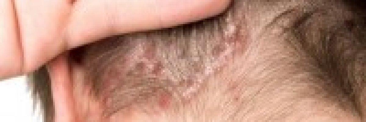 pikkelysömör felnőttek kezelésében fájdalmas vörös folt a bőrön