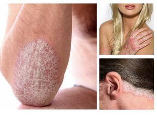 hogyan népi gyógymódok gyógyítják a pikkelysömör fején otthon az orr közelében vörös folt hámlik