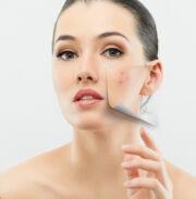 Hogyan lehet eltávolítani a vörös foltokat a pattanásokról az arcra