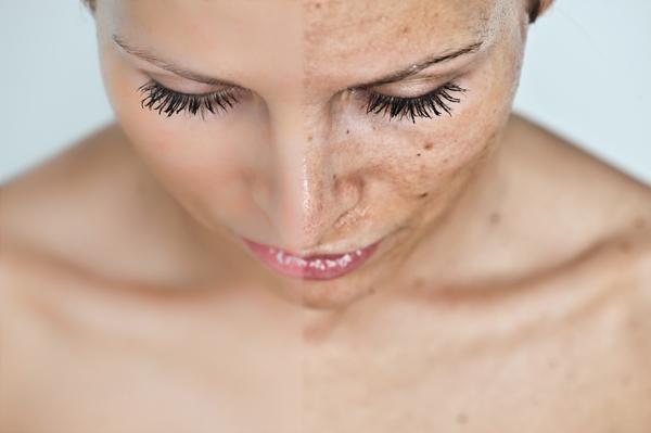 pikkelysömör a fején otthoni kezelés népi troxevasin az arc vörös foltjaihoz