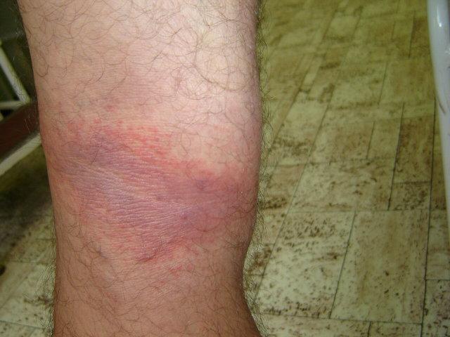 piros foltok a lábakon képek vörös foltok a bőrön fotót okoznak