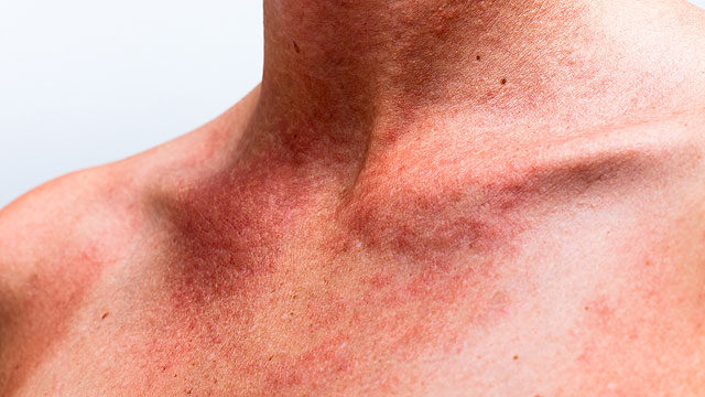 vörös folt jelent meg a mellkas bőrén termékek pikkelysömör kezelésére