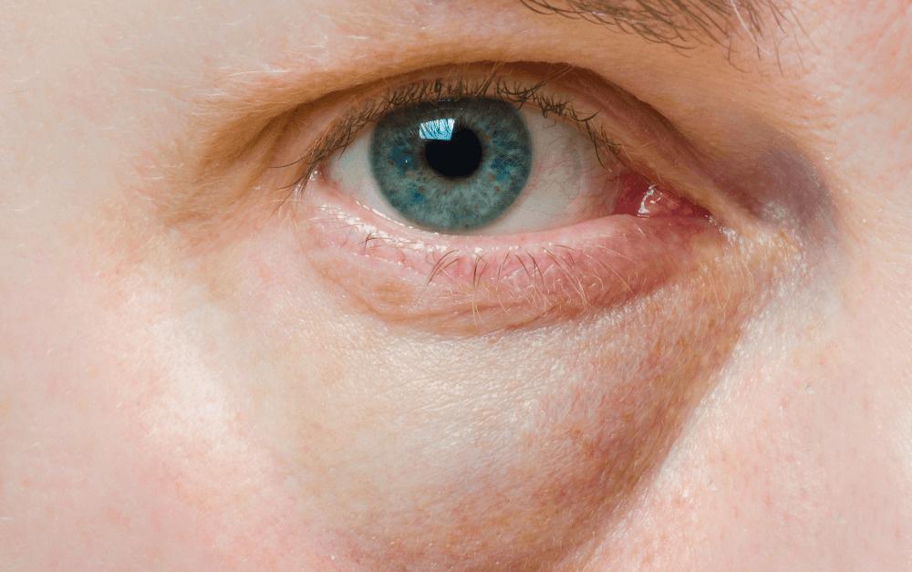 vörös folt a szem szemzugában a bőrön pikkelysömör kezelése népi gyógymódokkal a fej