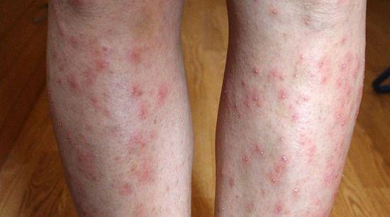 vörös foltok megjelenése a lábakon és a karokon