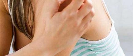 pikkelysömör arthropathic kezelés