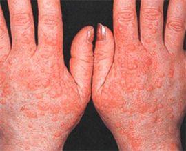 vörös foltok egy felnőtt kezén