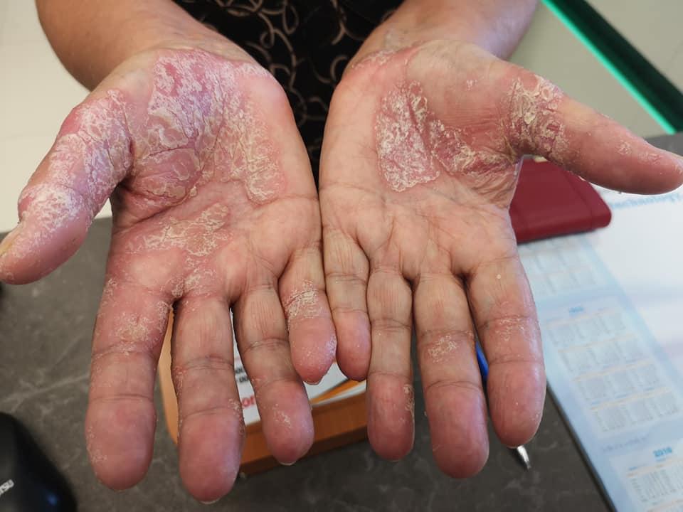 az ujján vörös folt hámlik