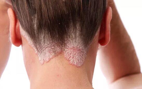 vörös foltok az arcon történő szőrtelenítés után vörös foltok a fej hátsó részén